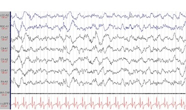 slow wave sleep polysomnographic reading